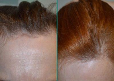 Alopecia 01