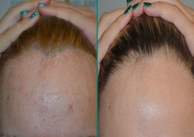 Alopecia 03